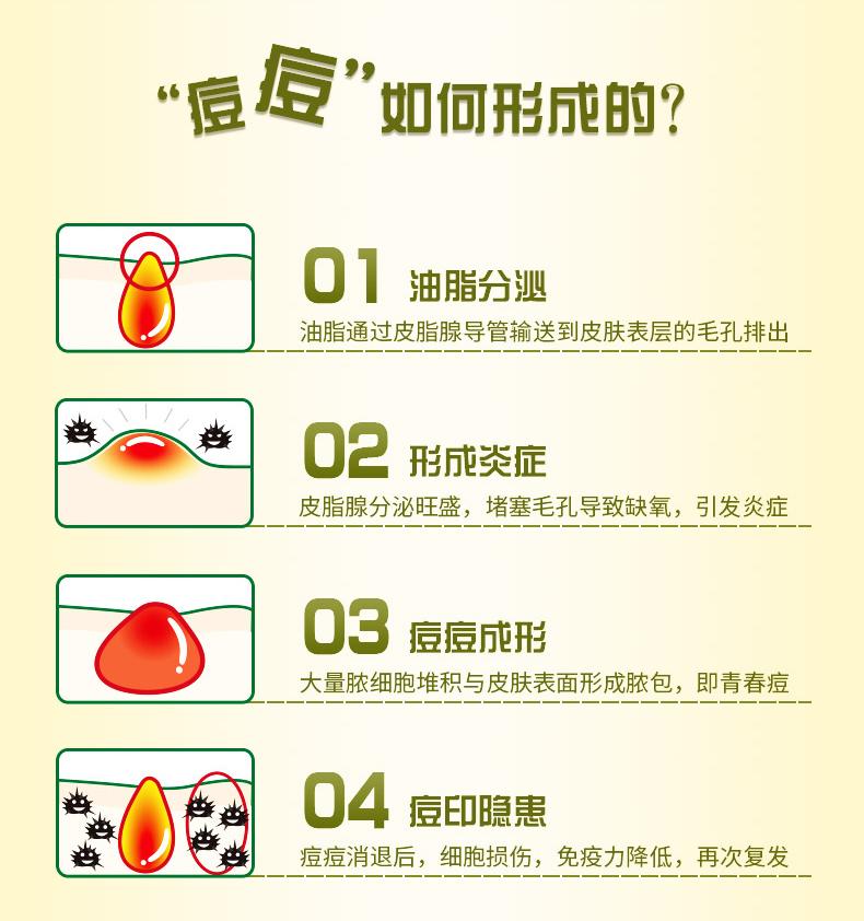 同仁堂 清痘脂质体喷剂 10ml/瓶 2